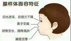 重庆耳鼻喉-腺样体肥大对儿童有