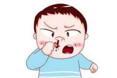 总是流鼻血是什么原因?仁品医生