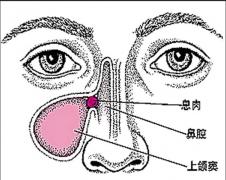 重庆鼻息肉的症状有哪些?