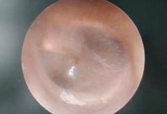 鼓膜穿孔了怎么办,一定要手术修